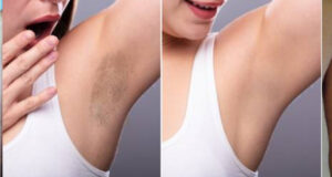 Laser Hair Treatments: Thinking Of One?